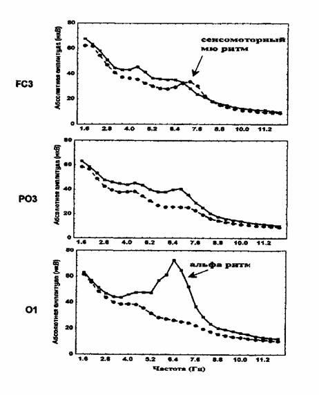 Среднегрупповые спектры ЭЭГ